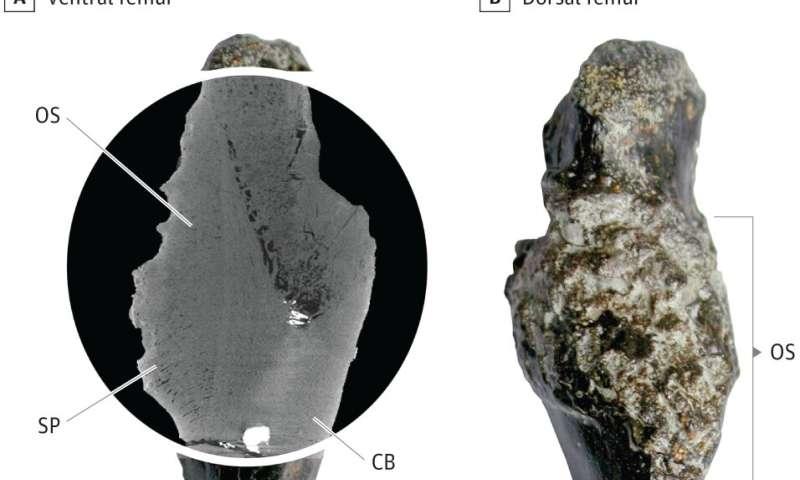 Case study documents bone cancer in 240-million-year-old stem-turtle