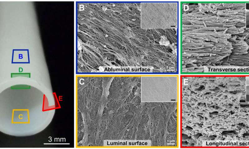 **Self-Sustaining, Bioengineered Blood Vessels Could Replace Damaged Vessels in Patients