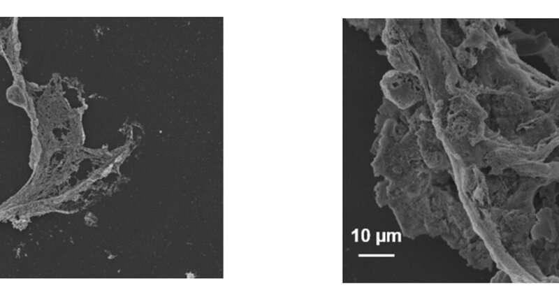 La scoperta mostra come l'accumulo di muco, non le infezioni, innesca danni polmonari da fibrosi cistica