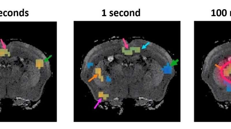 Fundamentally new MRI method developed to measure brain function in milliseconds