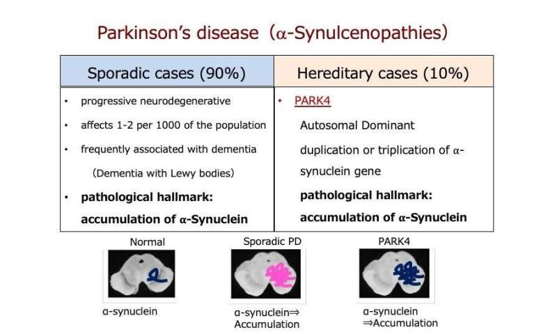 Stopping Parkinson's disease before it starts