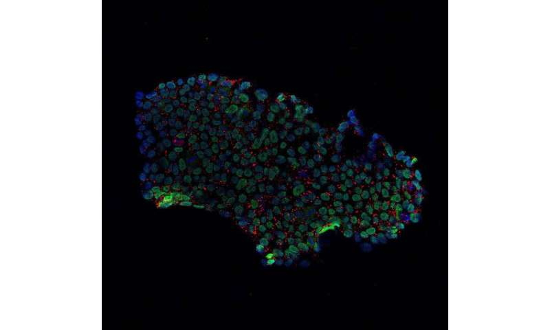 The start of a new era in stem cell therapy