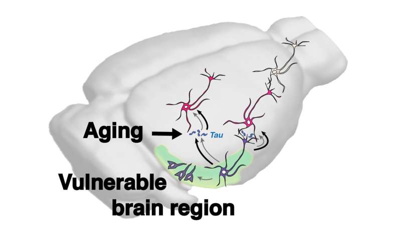 Age itself appears to increase the spread of Alzheimer's-associated tau in the brain