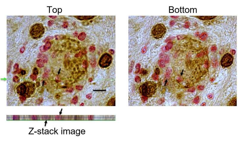 New evidence shows cytotoxic T cells can identify, invade, and destroy targets of large mass like Toxoplasma gondii tissue cysts