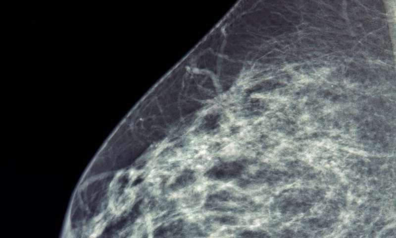 Breast cancer diagnosis by AI now as good as human experts
