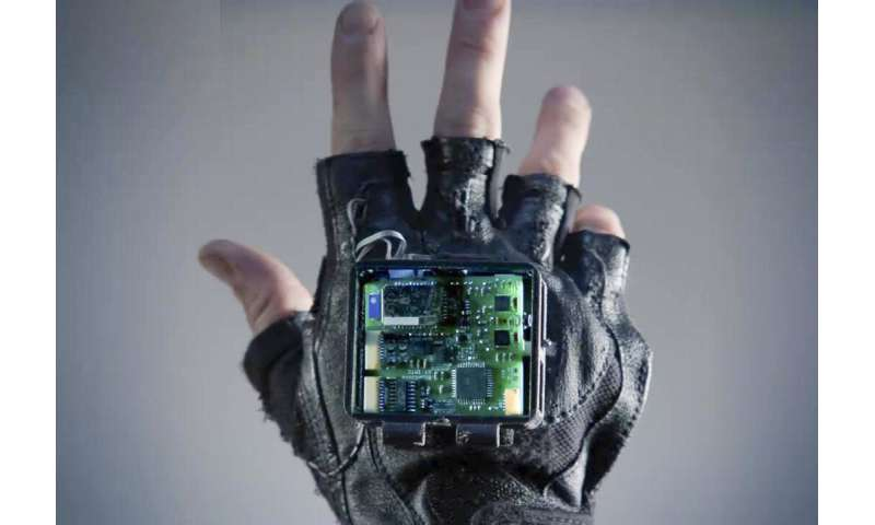 A glove to treat symptoms of stroke
