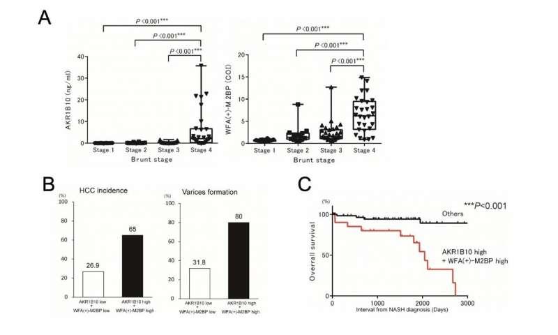 Aldo-keto reductase family 1 member B10 predicts advanced nonalcoholic steatohepatitis