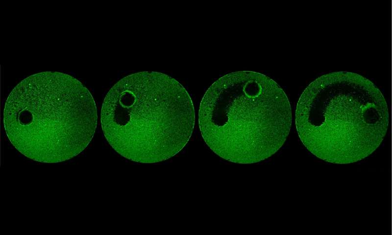 An army of microrobots can wipe out dental plaque