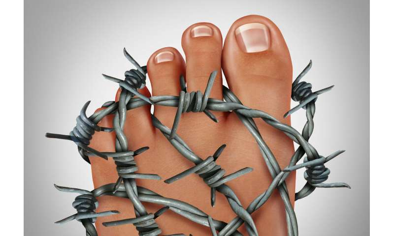 A new treatment for gout lowers the urinary acid level in the body