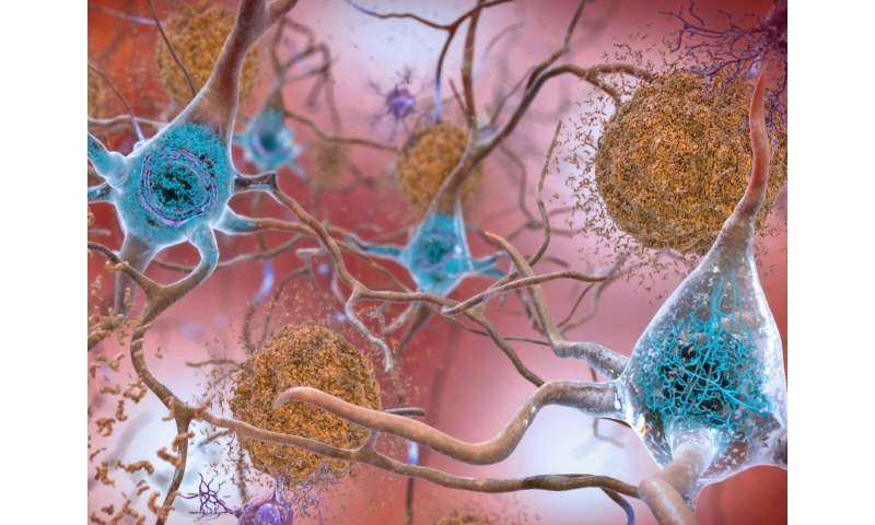 A precise look at Alzheimer's proteins