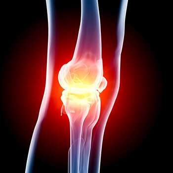 Bioactive scaffolds guide the way to sore knee relief, cartilage repair
