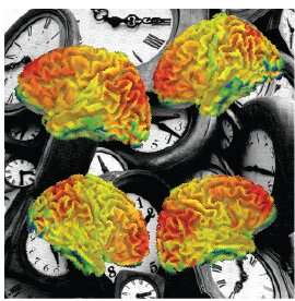 Brain clock ticks differently in autism