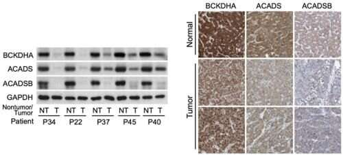Branched-chain amino acids regulate the development and progression of cancer