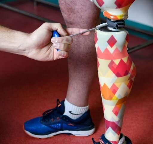 Bruno Paul's colorful prosthetic leg, March 13 2019