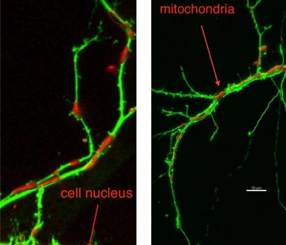 Cell component breakdown suggests possible treatment for multiple neural disorders