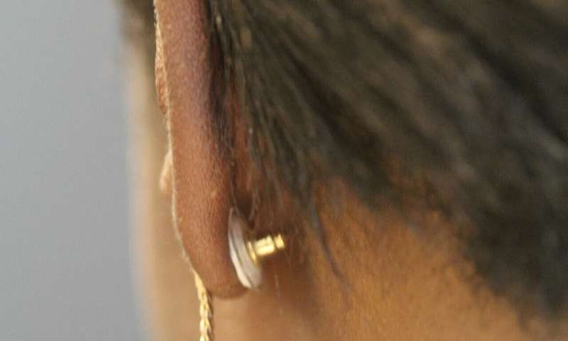 Contraceptive jewelry could offer a new family planning approach