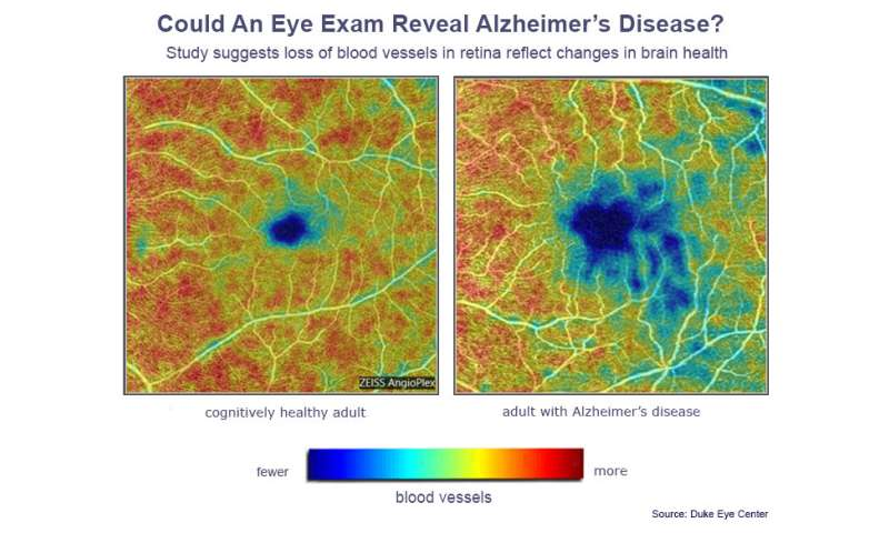 Could an eye doctor diagnose Alzheimer's before you have symptoms?