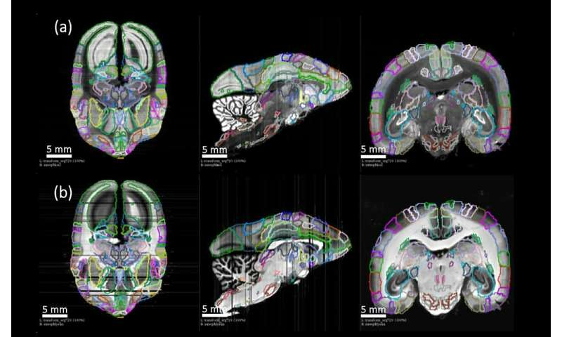 Detailed new primate brain atlas could lead to disease insights