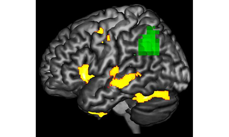 Detecting dementia's damaging effects before it's too late