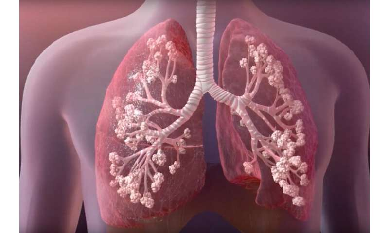 Discovery could improve cystic fibrosis treatment