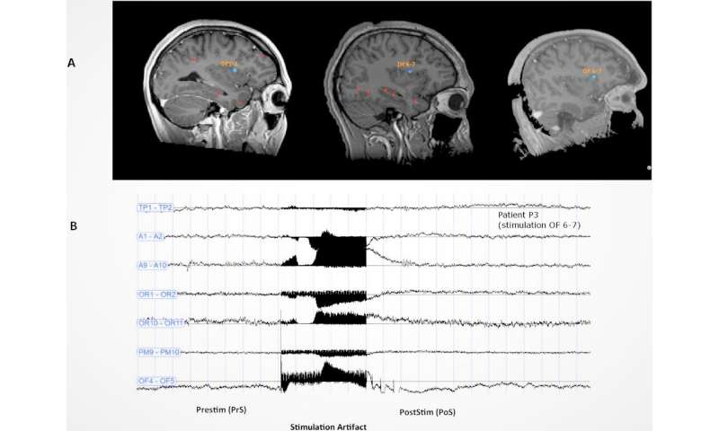 Does stimulation of the brain's dorsal anterior insula trigger ecstasy?