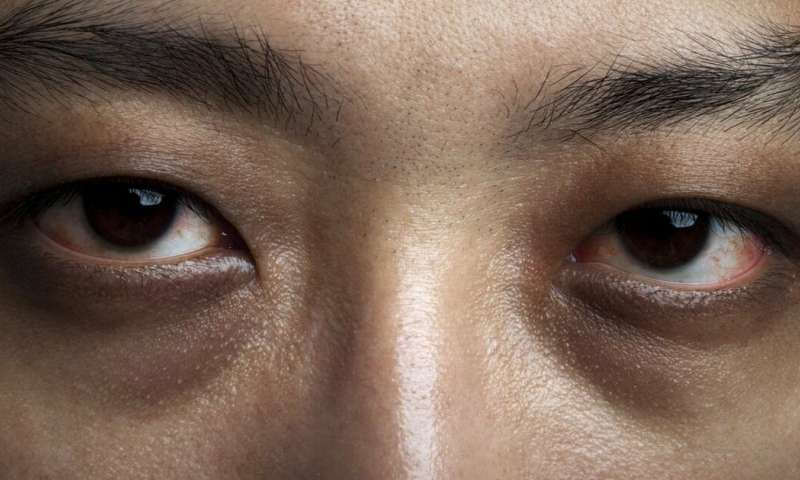 Dry eye disease and diabetes: new study reveals scale of issue and need for screening