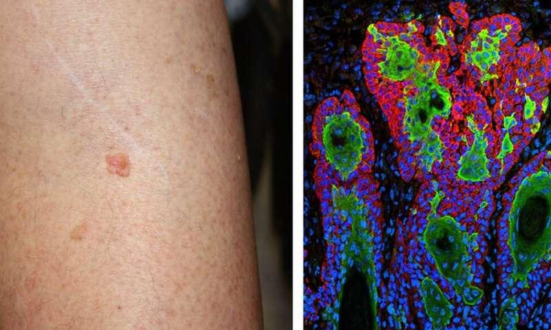 Excessive use of skin cancer surgery curbed with awareness effort