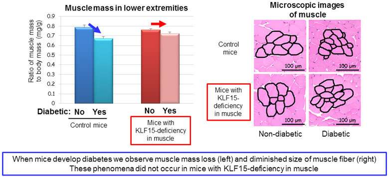 How diabetes causes muscle loss
