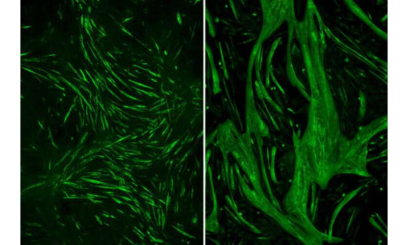 Lithium boosts muscle strength in mice with rare muscular dystrophy