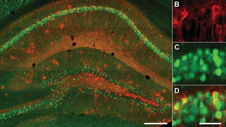 Image result for Negative memory storage affects depression symptoms