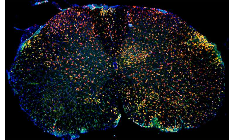 Newly discovered immune cells play role in inflammatory brain diseases