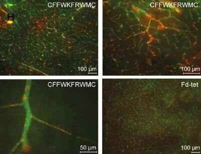 New molecule maps cerebrovascular system