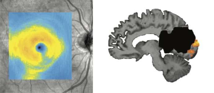 New study reshapes understanding of how the brain recovers from injury