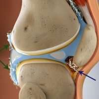 New therapy needed for two forms of painful joint condition