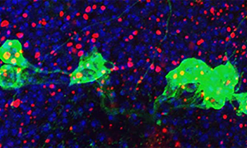NIH study implicates hyperactive immune system in aging brain disorders