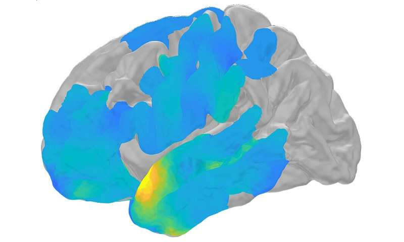 Our brains may ripple before remembering