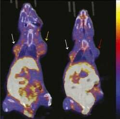 PET imaging agent may allow early measurement of efficacy of breast cancer therapy