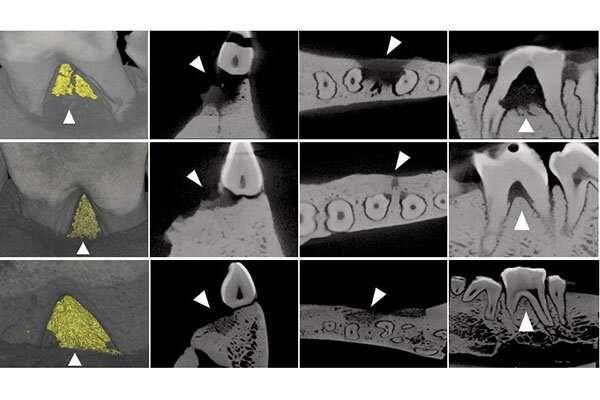 Promising treatment for periodontitis gum regeneration