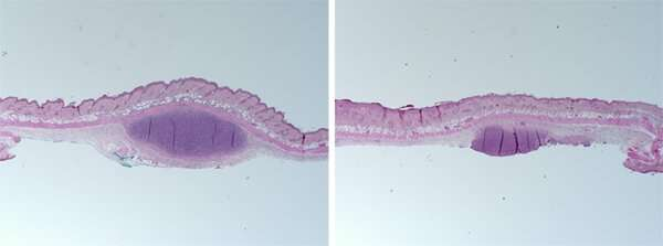 Proof of pimple: Mouse model validates how 'good' and 'bad' bacteria affect acne