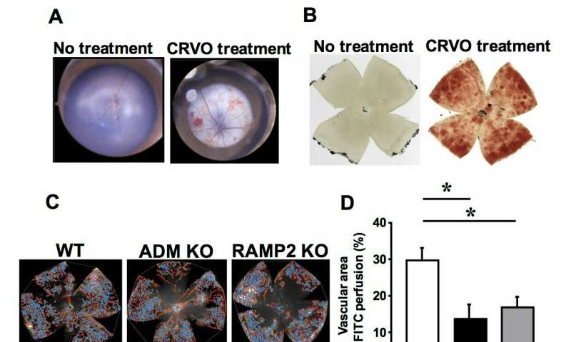Protective effects of ADM-RAMP2 system make it a new therapeutic target for retinal vein occlusion