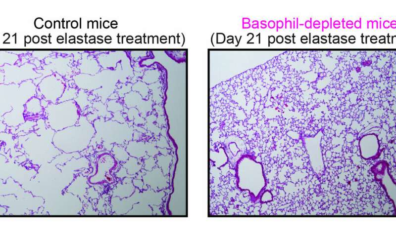 Mouse Model Yields Possible Treatment >> Researchers Breathe New Life Into Copd Research Using Mouse Models