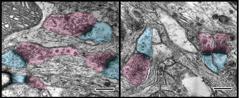 Single gene linked to host of abnormalities during neurodevelopment