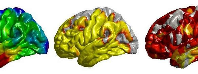 Smoking, high BP, diabetes, obesity linked to unhealthy brains