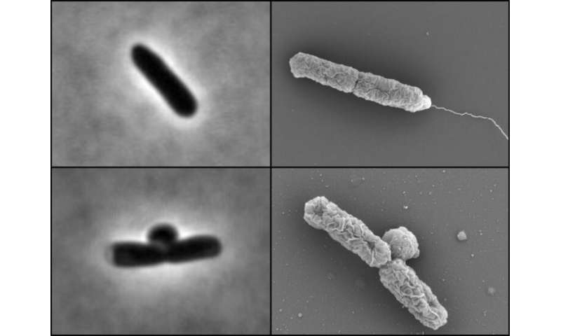 Specialist enzymes make E. coli antibiotic resistant at lowpH
