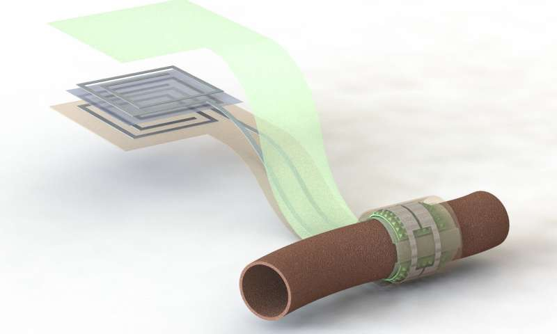Stanford researchers create a wireless, battery-free, biodegradable blood flow sensor