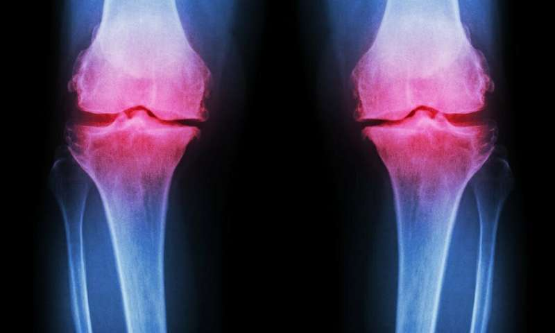 Stem cell treatments for arthritic knees are unproven