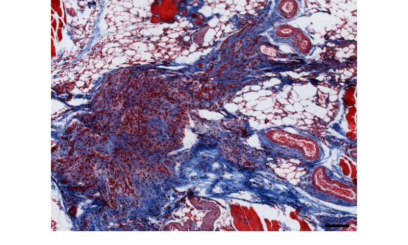 Study in mice uncovers an unknown pathway for breast cancer tumors to recur
