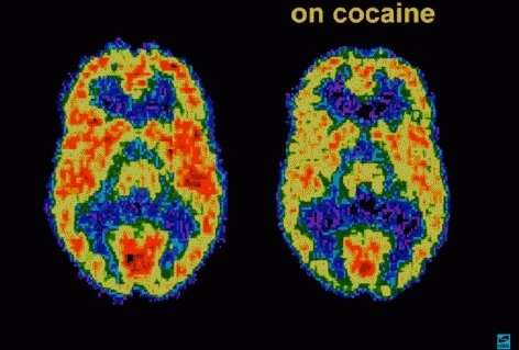 Study may help prevent relapse in cocaine use disorder patients