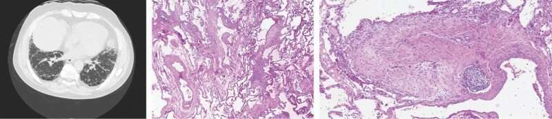 Study: Protein linked to cancer growth drives deadly lung disease