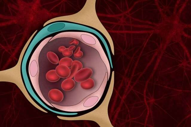 Tissue model reveals role of blood-brain barrier in Alzheimer's
